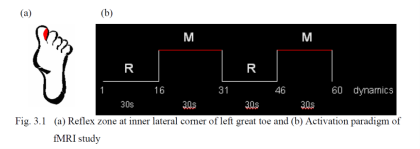 Reflex zone at inner lateral corner of left great toe and Activation paradigm of fMRI study